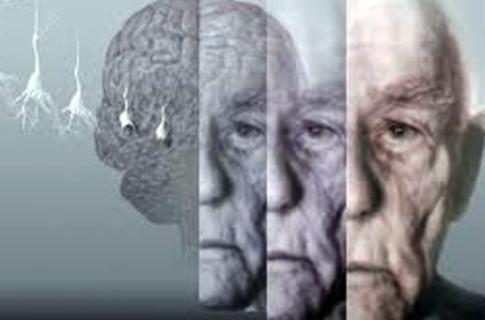 Photo of ალცჰაიმერი – მეცნიერთა ახალი კვლევები