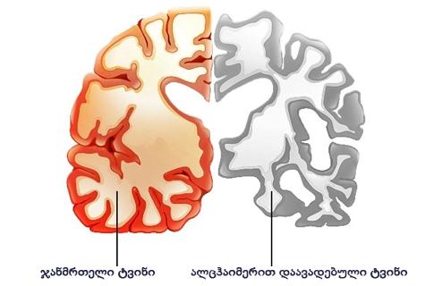 Photo of შემოქმედებითი პროცესი ალცჰაიმერის დაავადებას ამუხრუჭებს