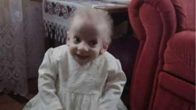 Photo of უკრაინაში 8 წლის გოგონა ნაადრევი სიბერით გარდაიცვალა