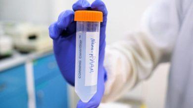 Photo of ექსპერიმენტულმა საშუალებამ კიბოს უჯრედები ყოველგვარი პრეპარატის გამოყენების გარეშე გაანადგურა