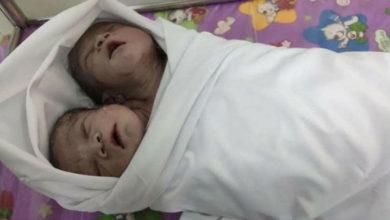 Photo of მიანმარში ორთავიანი ბავშვი დაიბადა