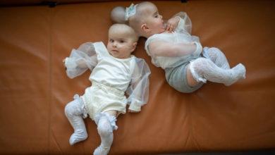 Photo of აშშ-ში თავის ქალებით შეერთებული ტყუპები წარმატებით განაცალკევეს