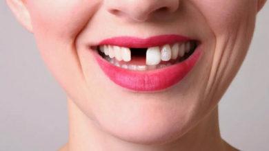 Photo of მეცნიერებმა კბილების ხელახალი გაზრდის მეთოდს მიაგნეს