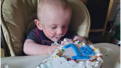 Photo of მსოფლიოში ყველაზე დღენაკლულმა ბავშვმა თავისი პირველი დაბადების დღე აღნიშნა