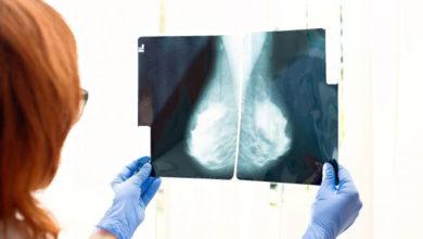 Photo of მეცნიერებმა ძუძუს კიბოს განკურნების ახალ მეთოდს მიაკვლიეს