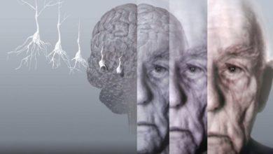 Photo of ალცჰაიმერით დაავადებული პაციენტების ტვინებში მაგნიტური რკინა და სპილენძი აღმოაჩინეს