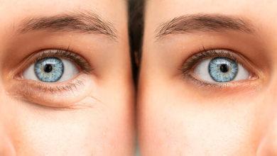 Photo of რჩევები პროფესიონალებისგან: როგორ ვებრძოლოთ შეშუპებას და მუქ წრეებს თვალების ქვეშ?